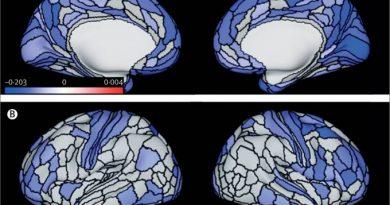 Criminosos reincidentes têm cérebros diferentes do normal, aponta estudo