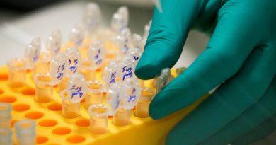 Laboratório brasileiro cria análise de suscetibilidade genética à Covid 19