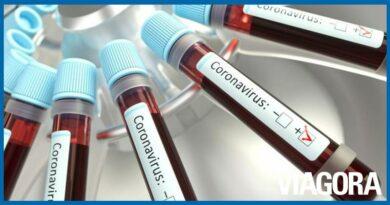 Governo estuda diagnóstico de Covid 19 sem realização de teste